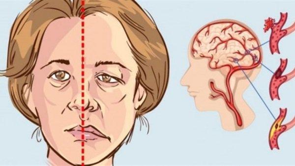 أعراض خطيرة تنذر بمرض السكتة الدماغية