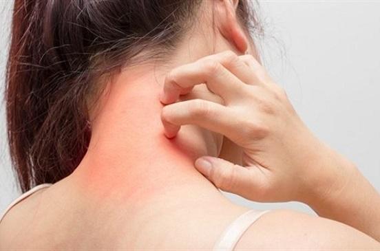 اكتشاف بروتين جديد يزيد مخاطر الإصابة بسرطان الجلد