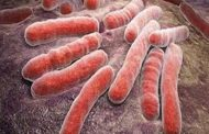 خبراء يحذرون من دور السل في زيادة فرص إصابة المرأة بالعقم